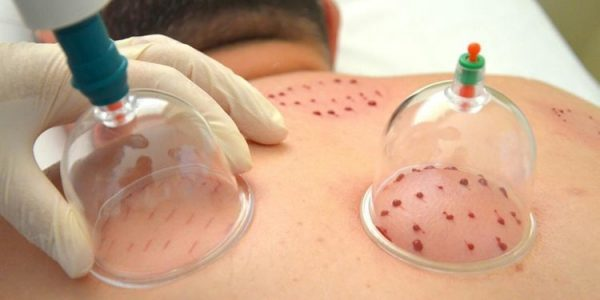 Cupping-Therapy-in-Cairo-Egypt-for-Hijama-Treatment